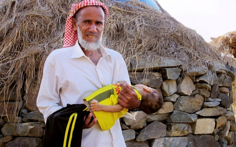Mobile medical teams provide a lifeline for children in Yemen
