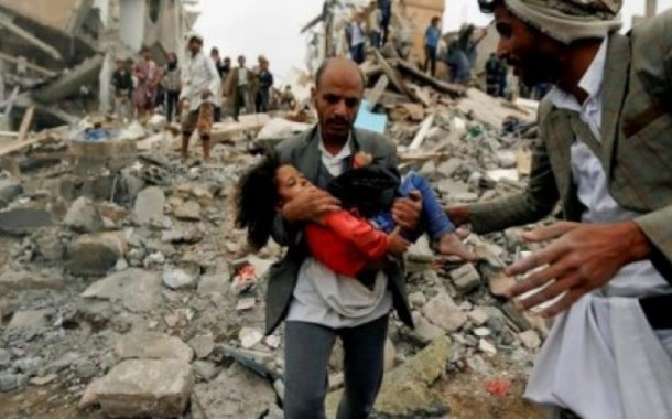 Yemen is a test of our humanity