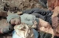 Iranian Children – 1987 – Saddam's Crime – Chemical Attack on Sardasht