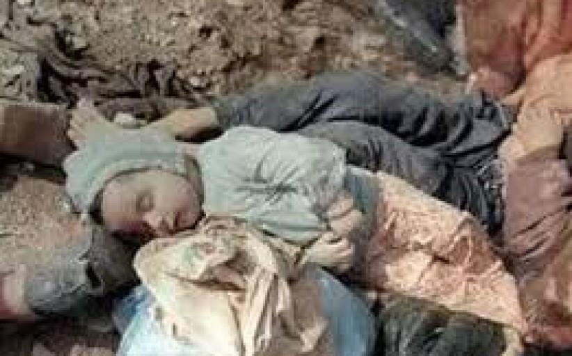 Iranian Children – 1987 – Saddam's Crime – Chemical Attack on Sardasht