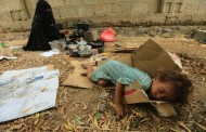 UNICEF : 2.4 million Yemeni children face deadly hunger